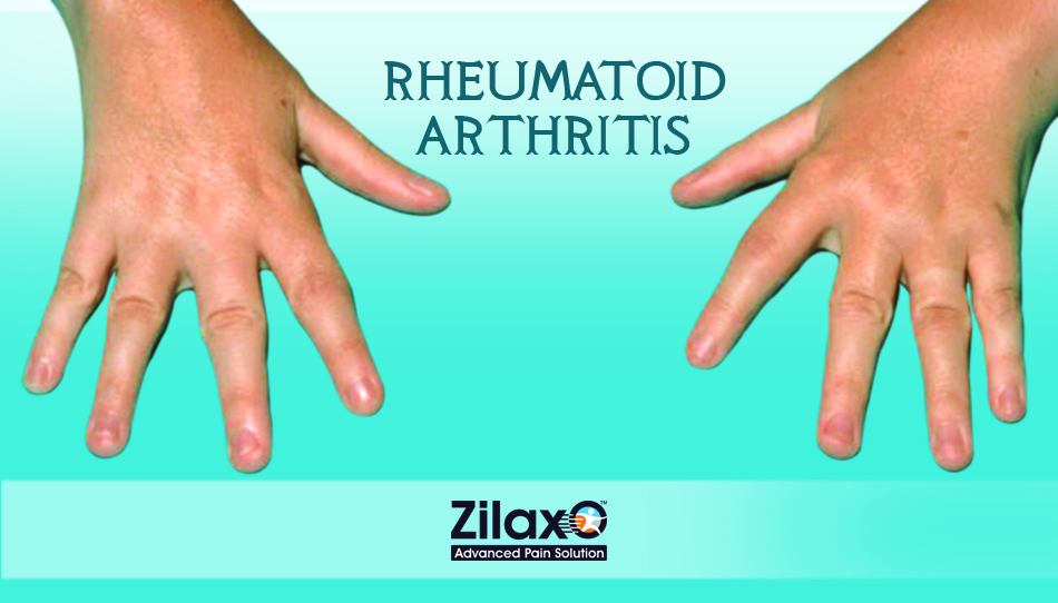 Rheumatoid Arthritis Ra Is A Disease Whose Early Symptoms Are Minor And Transient Such Symptoms Are Usually Seen On Both Sides Of The Body