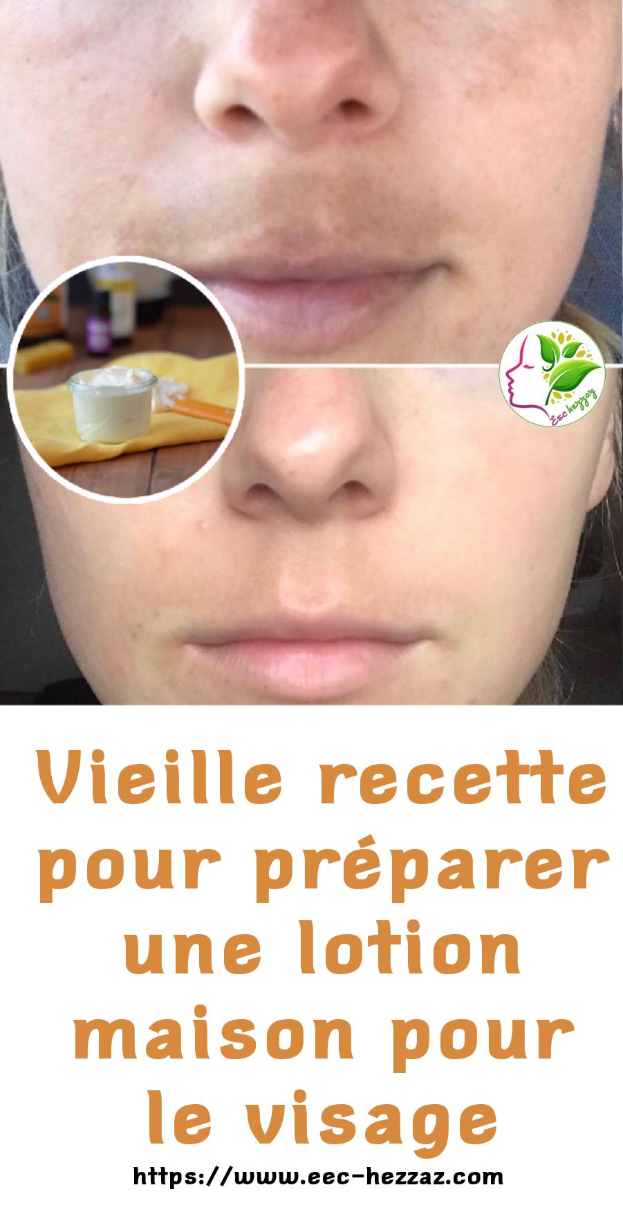 Vieille recette pour préparer une lotion maison pour le visage