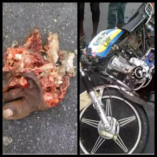 A mans feet and motorcycle involved in an accident