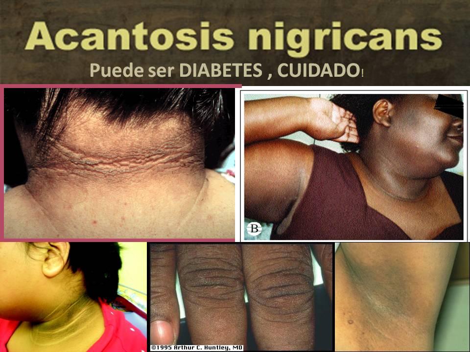 acantosis nigricans sin diabetes