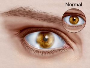 http://eye-care-hospital.com/corneal-dystrophy.html
