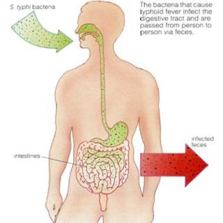 Inkubasi Tifus Abdominalis Mengenal Penyakit Tipes Dan Gejala Tipes
