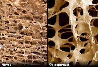 Cara mengobati tulang keropos