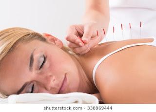 Akupuntur adalah sugesti medis terapan