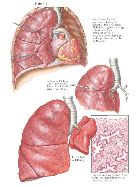 Pulmonary Agenesis, Aplasia, and Hypoplasia