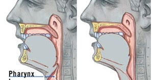 My Voice: Having surgery: types of laryngectomy and ...