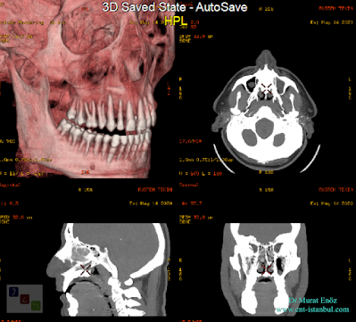 Nasal Septum Deviation - Paranasal Sinus Tomography