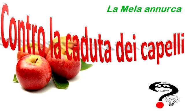 calvizie