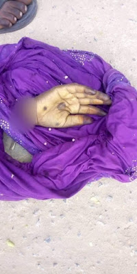 Man Cut Off Wife's Hand For Disobeying Him