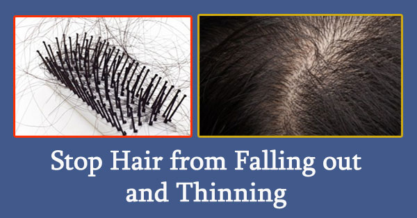 Stop Hair from Falling out and Thinning