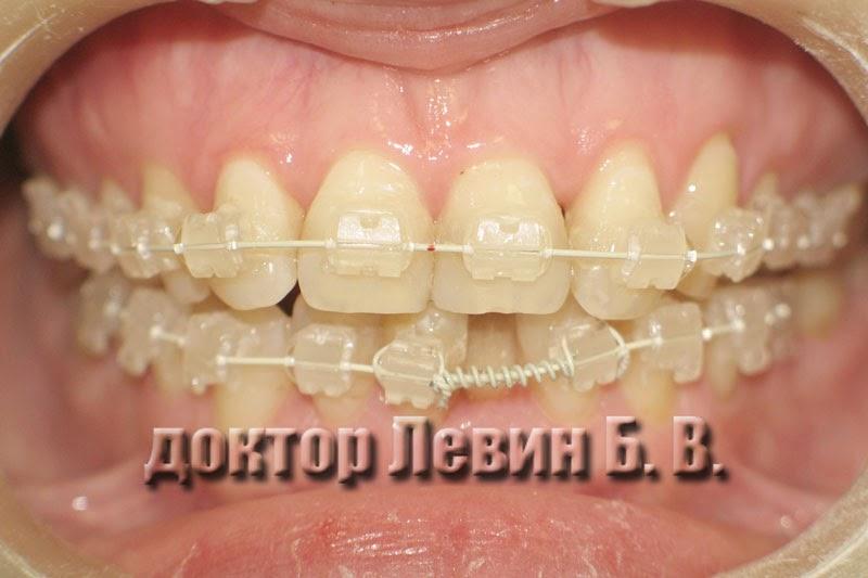 Фотография иллюстрирует динамику лечения керамическими брекетами
