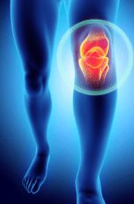 11 نوع من الأطعمة للتخلص من آلام الركبة بشكل طبيعي Knee pain