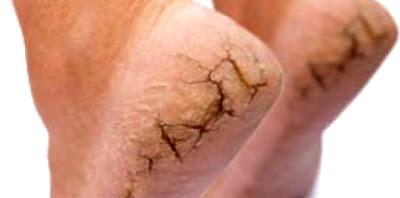 mengatasi kulit kaki pecah-pecah