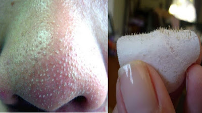 Amazing 5 Effective Blackhead Removal Remedies That Actually Work | Wellness Food Team