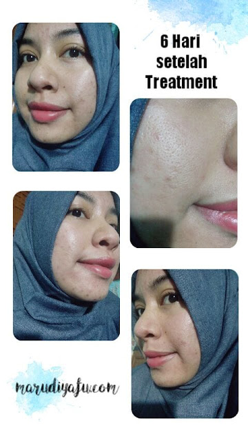 harga insta beauty center, harga perawatan di insta beauty center, insta beauty center price list, harga filler hidung di insta beauty center, klinik insta beauty center, beauty center jakarta, dokter siska beauty center