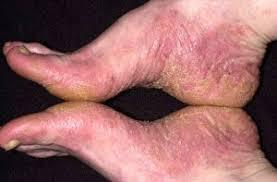 Kulit kering di bagian kaki karena eksim menahun