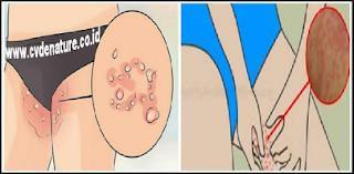 obat gatal selangkangan yang sering kambuh dan sulit diobati