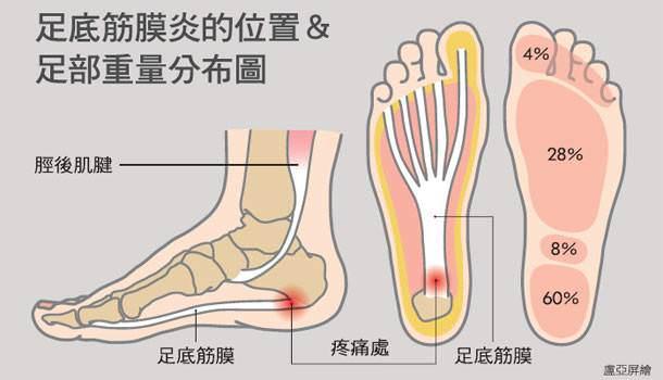 一下床踩地就腳痛?小心「足底筋膜炎」教你3招一生受用