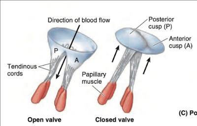 Mitral Valve (Bicuspid)