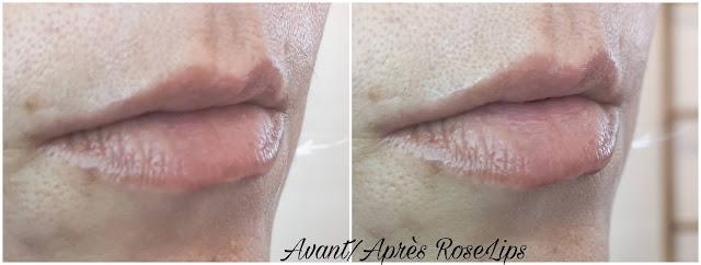 avant-apres-roselips-rosegold-paris