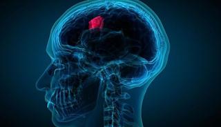 Ternyata Ini Gejala Kanker Otak dan Penyebab Utama yang Sering Tidak Disadari
