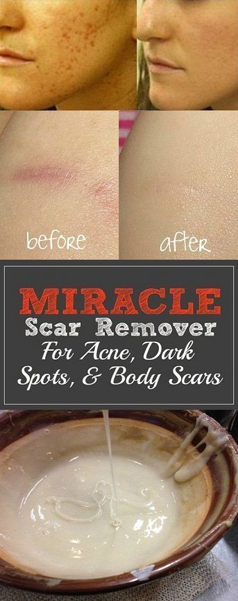 Remove Dark Spots and Acne Scars From Face