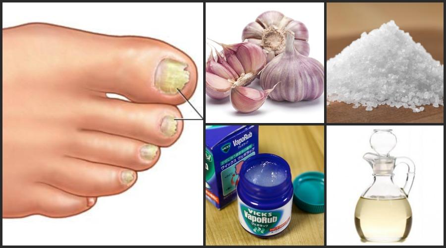MUNDOBLOG: Con esta receta casera eliminarás los hongos de las uñas ...