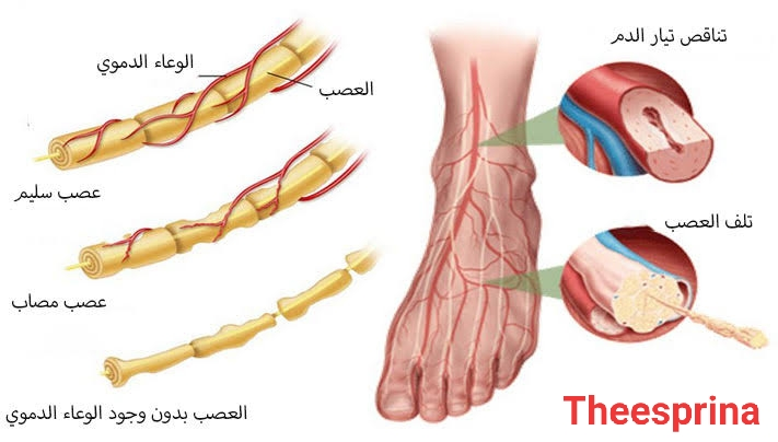 الاعتلال العصبي السكري، اعراضه وأسبابه وعلاجه.