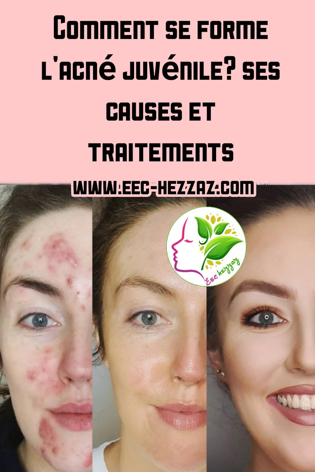 Comment se forme l'acné juvénile? ses causes et traitements