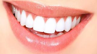 رؤية سقوط الأسنان في منام المتزوجة