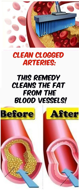 Clean Clogged Arteries: The Potion Which Pushes Fat From The Blood Vessels!