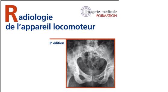 Radiologie De l'appareil Locomoteur PDF