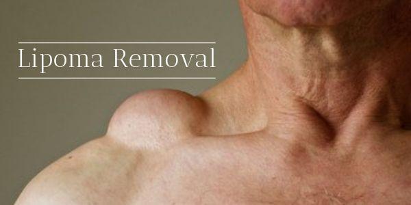 lipoma treatment without surgery