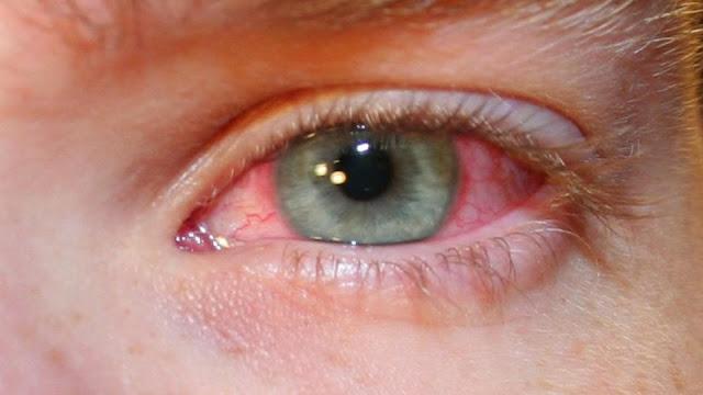 Ученые научились определять COVID-19 по глазам