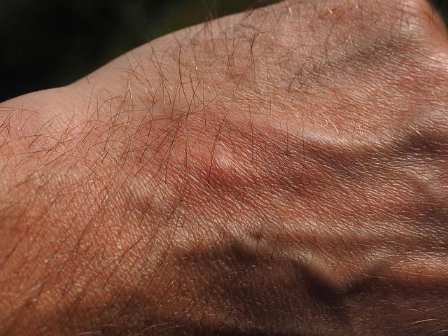 Los piquetes de pulga suelen ser muy molestos