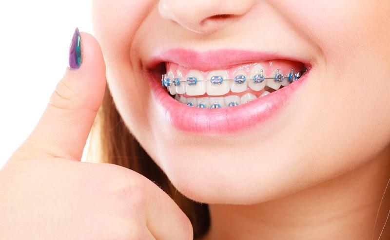 manfaat kawat gigi