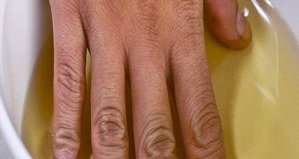 Βάζει το χέρι της σε μηλόξιδο δύο φορές την εβδομάδα