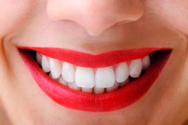 DIY Homemade Natural Teeth Whitener