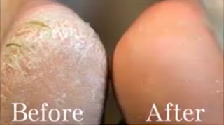 Fungus Infection: How To Treat Athlete Foots Naturally | UnveilingNature