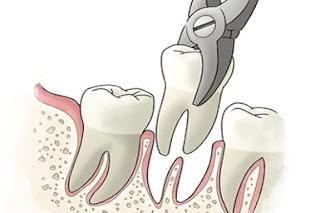 Procédure d'extraction des dents