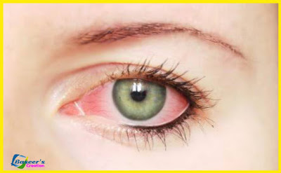 آشوب چشم جس کو آنکھ آنا بھی کہا جاتا ہے۔ conjunctivitis