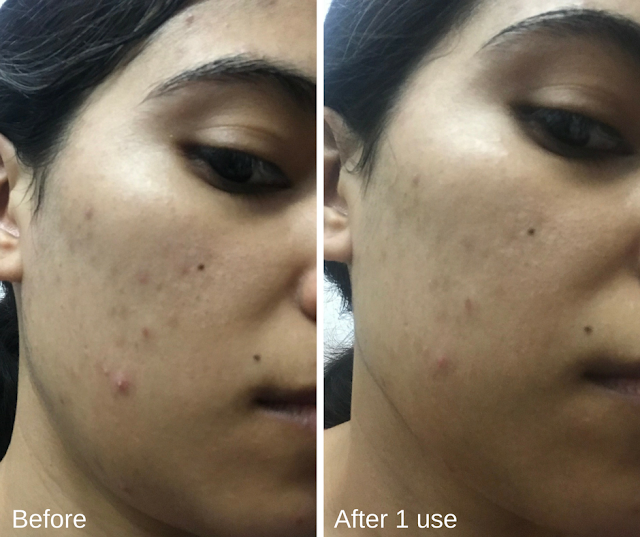 Klairs Product Review Before and After