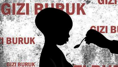 Jumlah Penderita Gizi Buruk di Kabupaten Lampung Tengah Mengkhawatirkan
