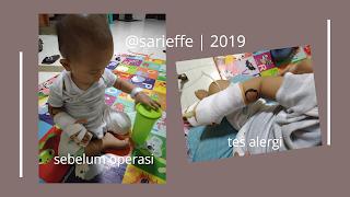 Bayi bermain saat diinfus