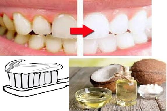 Mulai sekarang Tak Perlu Lagi Susah-Susah ke Dokter Gigi, Hanya ButuH 15 Menit Campuran 2 Bahan ini Terbukti Bisa Bikin Gigi Putih Bersih. Begini Caranya.!!
