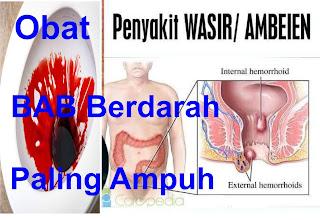 Obat Ambeien Di Apotik Bab Berdarah Paling Ampuh