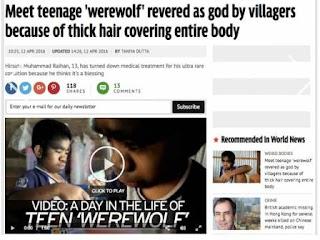 Bocah 'Wolverine' Asal Kalimantan Ini Jadi Sorotan Media Luar