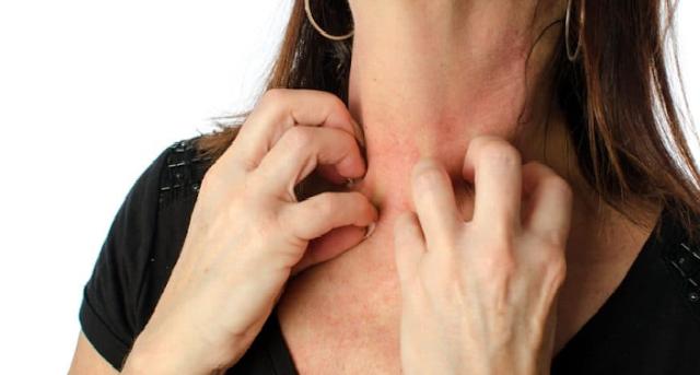 Manfaat Kunyit Untuk Obat Alergi Alami