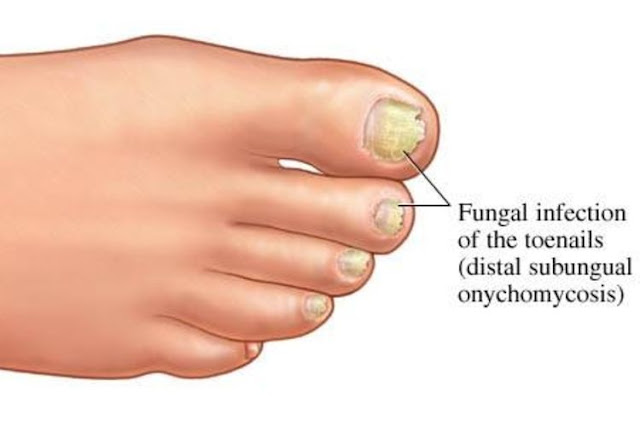 Natural Home Remedies nail Fungus Infections - Home Remedies