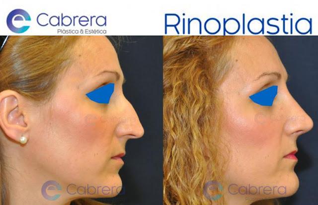 Resultado de rinoplastia tras cirugía del Dr. Emilio Cabrera